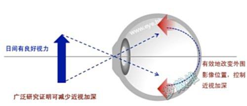 角膜五层结构图